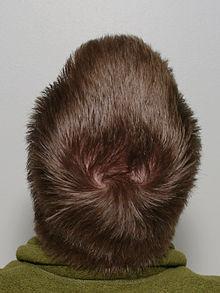 perte de cheveux avoir une alop cie n 39 est pas une fatalit le web communique. Black Bedroom Furniture Sets. Home Design Ideas